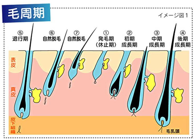 ハイパースキン減毛(脱毛)システム